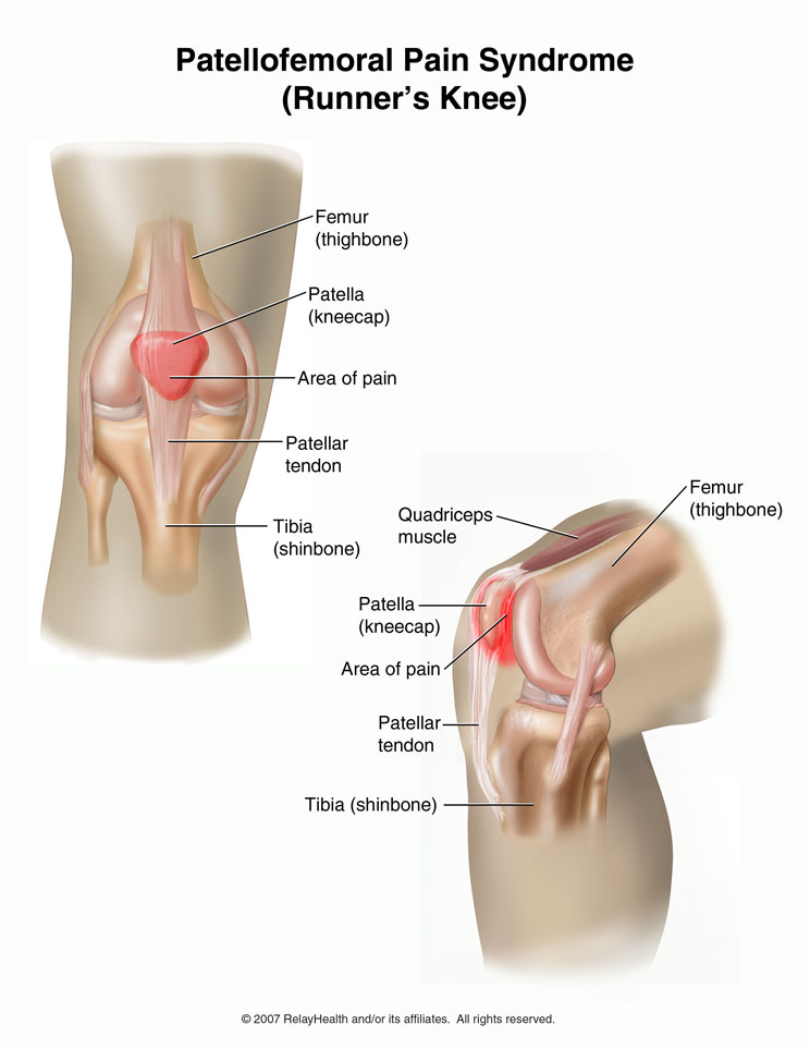 Runner's Knee: How to deal with it and recover quickly